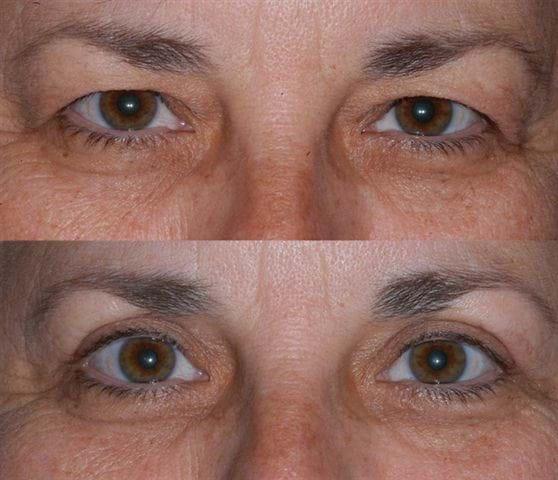 welke verzekering vergoed ooglidcorrectie